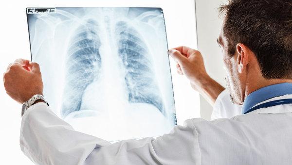 Рентген на дому тазобедренного сустава санкт петербург предвывих тазобедренного сустава у детей